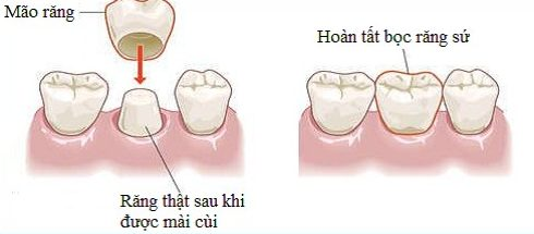 cách bọc sứ cho răng hô có hết hô không 1