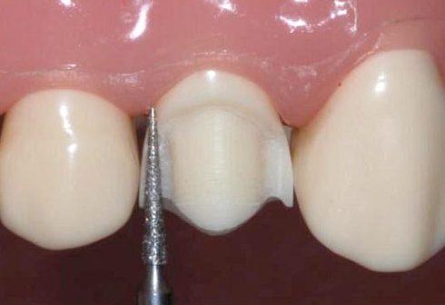 cách bọc sứ cho răng hô có hết hô không 4