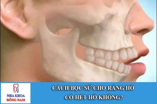 cách bọc sứ cho răng hô có hết hô không?