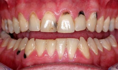 cách điều trị đốm đen trên răng 1