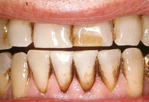 cách điều trị đốm đen trên răng 2