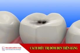 cách điều trị đốm đen trên răng cách điều trị đốm đen trên răng