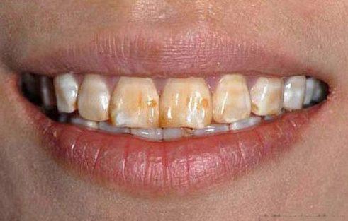 cách điều trị đốm đen trên răng .3
