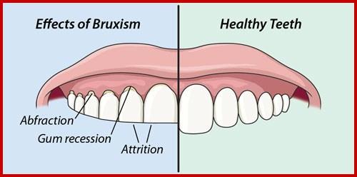 Chi phí của máng chống nghiến răng giá bao nhiêu 2