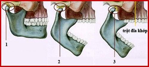 Chi phí của máng chống nghiến răng giá bao nhiêu 3