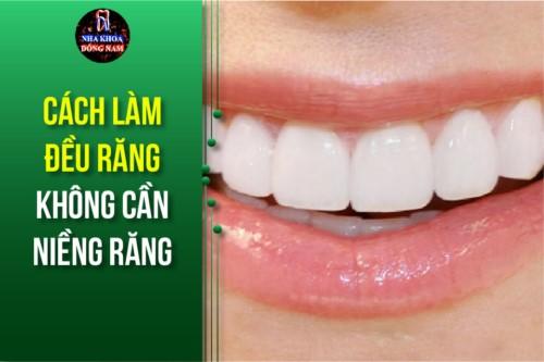 Cách làm đều răng không cần Niềng Răng