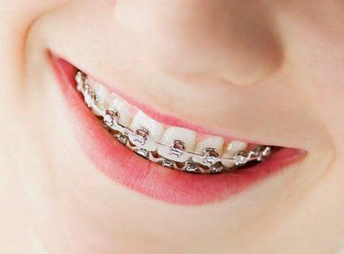 chia sẻ cách làm đều răng không cần niềng răng 1