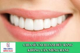 chia sẻ cách làm đều răng không cần niềng răng