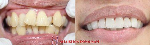 chia sẻ cách làm đều răng không cần niềng răng 3