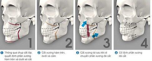 chia sẻ cách làm đều răng không cần niềng răng 4