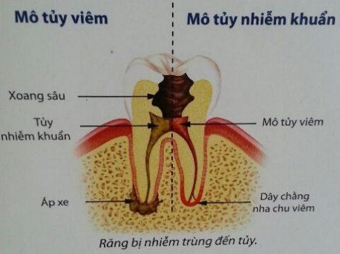 [chia sẻ] chữa viêm tủy răng có đau không 1