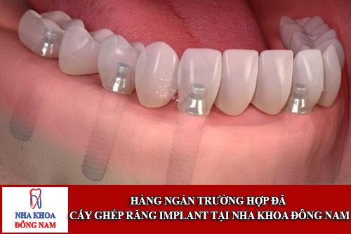 hàng ngàn trường hợp cấy ghép răng implant tại nha khoa đông nam