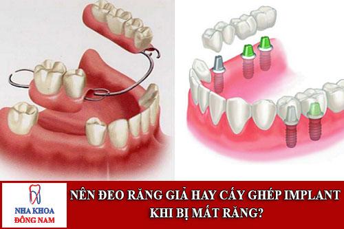 nên đeo răng giả hay cấy ghép implant khi bị mất răng
