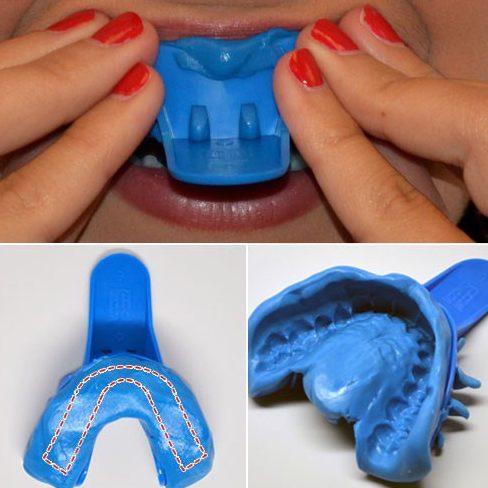 nha khoa làm máng tẩy trắng răng tại nhà cho bệnh nhân như thế nào 2