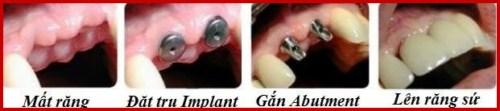 Cấy ghép Implant tại nha khoa Đông Nam
