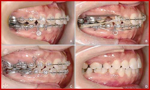 Chỉnh nha niềng răng tại phòng khám