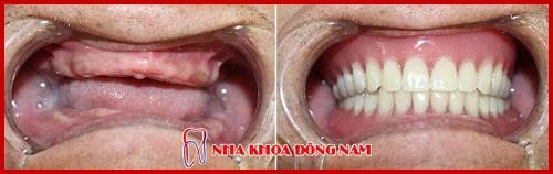 trường hợp phục hình răng tháo lắp tại phòng khám