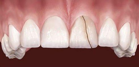 phương pháp trị đau nhức răng tại nha khoa 2
