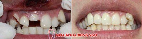 phương pháp trị đau nhức răng tại nha khoa 5