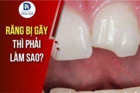 răng bị gãy thì phải làm sao
