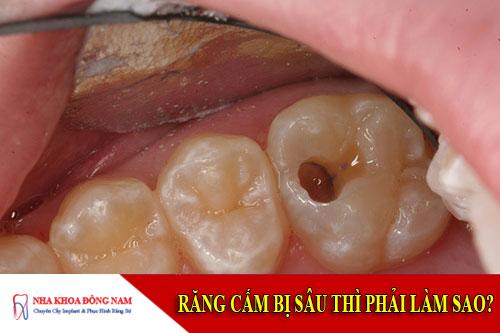 răng cấm bị sâu thì phải làm sao?