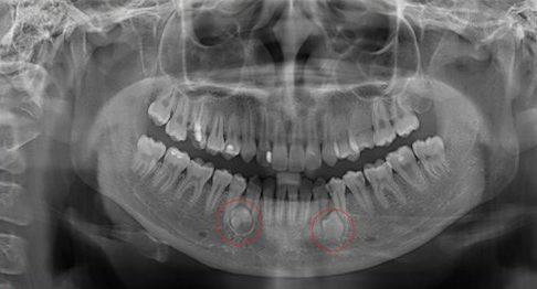 răng mọc ngầm thì phải làm sao 1