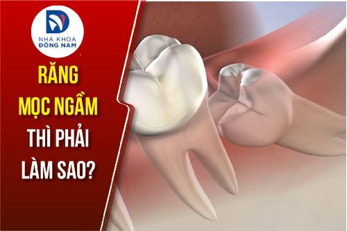 răng mọc ngầm thì phải làm sao