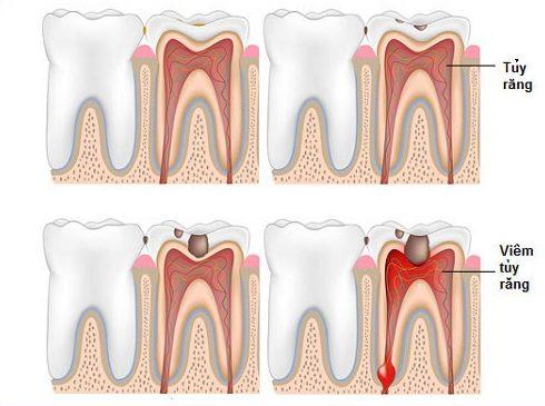 tìm hiểu thuốc chữa tủy răng tại nha khoa 1