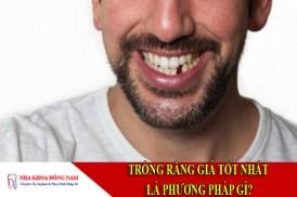 trồng răng giả tốt nhất là phương pháp gì