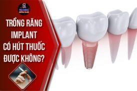 Trồng Răng Implant Có Hút Thuốc Được Không?