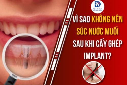 Vì Sao Không Nên Súc Nước Muối Sau Khi Cấy Ghép Implant