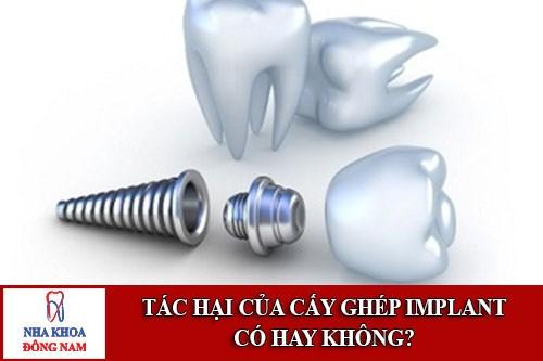 Tác Hại Của Cấy Ghép Implant