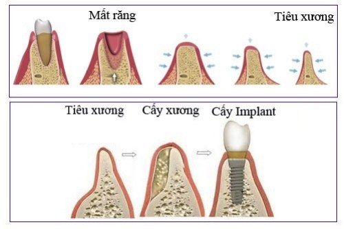 Tác Hại Của Cấy Ghép Implant 4