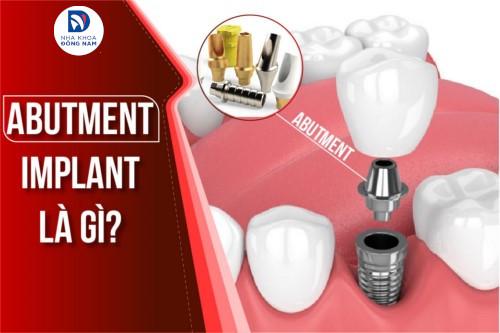 Abutment Implant là gì có tốt không
