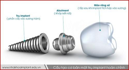 Abutment Implant là gì giá bao nhiêu 1
