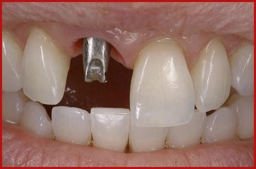 Abutment Implant là gì giá bao nhiêu 2