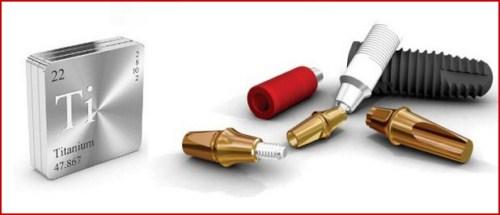 Abutment Implant là gì giá bao nhiêu 4