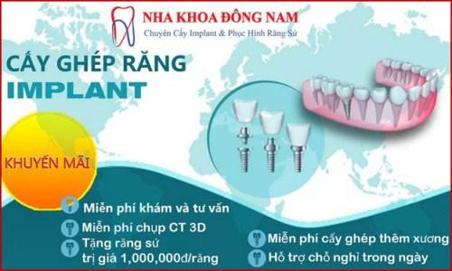 Abutment Implant là gì giá bao nhiêu 8