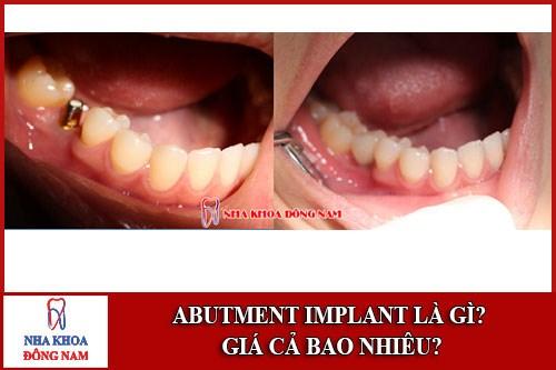 Abutment Implant là gì giá bao nhiêu