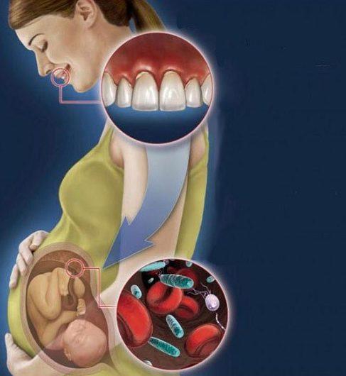 bà bầu bị viêm tủy răng thì phải làm sao 2