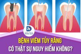 bệnh viêm tủy răng có nguy hiểm không