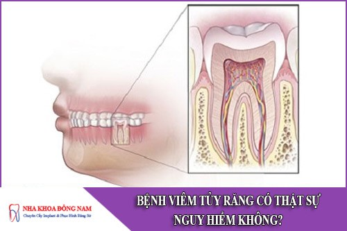 bệnh viêm tủy răng có thật sự nguy hiểm không