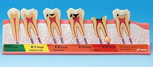 bệnh viêm tủy răng có thật sự nguy hiểm không 1