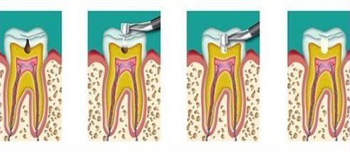 bệnh viêm tủy răng có thật sự nguy hiểm không 2