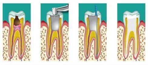 bệnh viêm tủy răng có thật sự nguy hiểm không 3