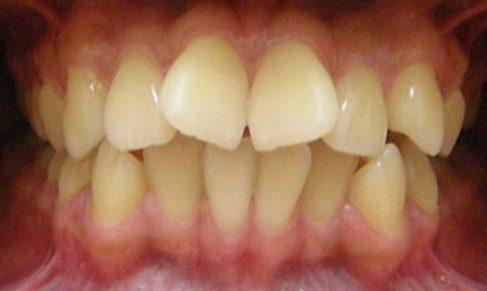 cách điều trị răng cửa có hình cánh bướm không cần niềng răng 1