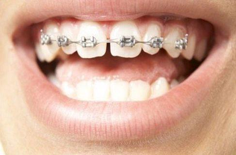 cách điều trị răng cửa có hình cánh bướm không cần niềng răng 2