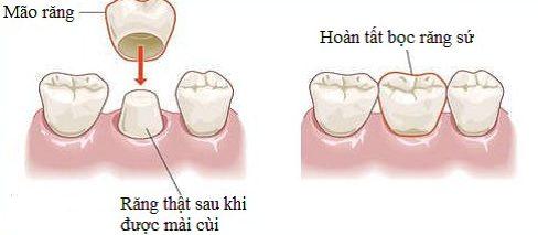 cách điều trị răng cửa có hình cánh bướm không cần niềng răng 3