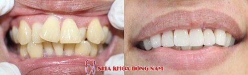 cách điều trị răng cửa có hình cánh bướm không cần niềng răng 4