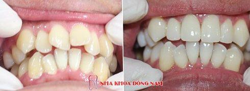 cách điều trị răng cửa có hình cánh bướm không cần niềng răng 5